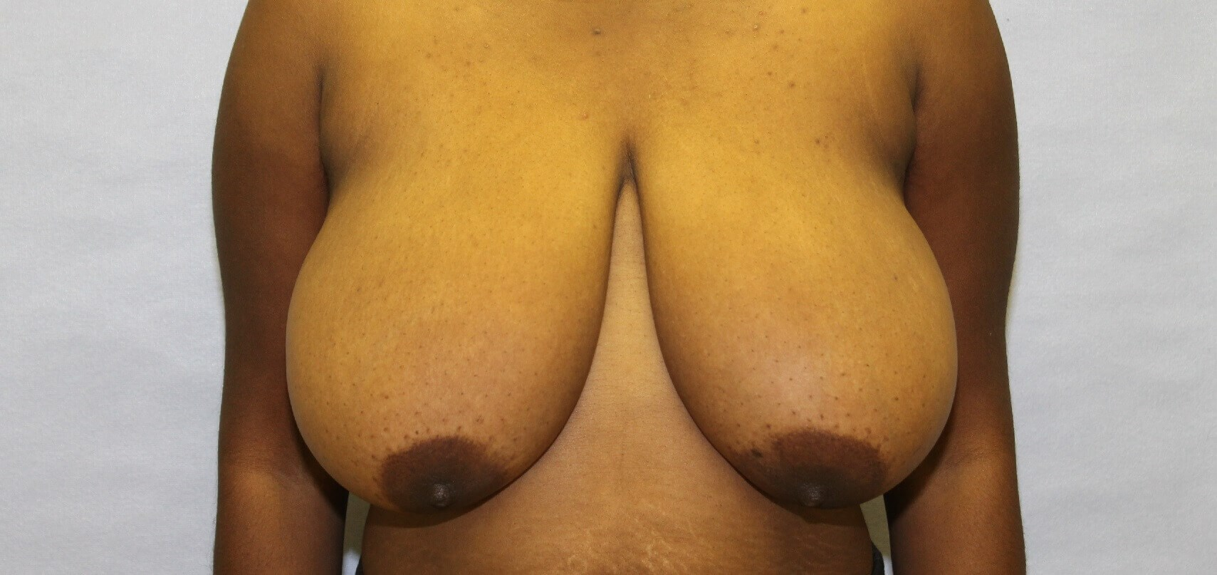Breast Reduction, Raleigh, NC Before