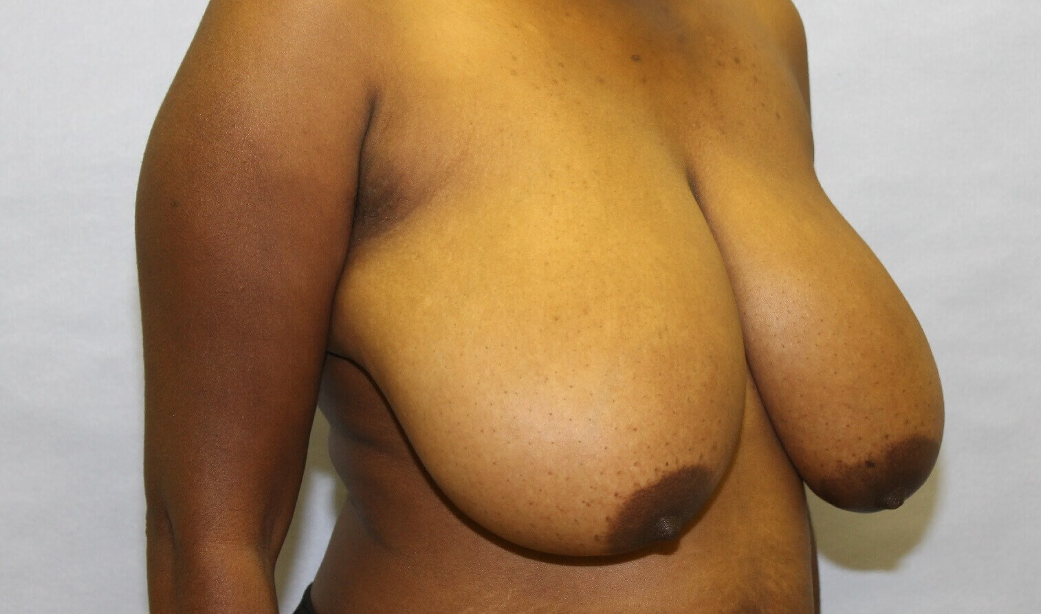 Breast Reduction Raleigh, NC Before