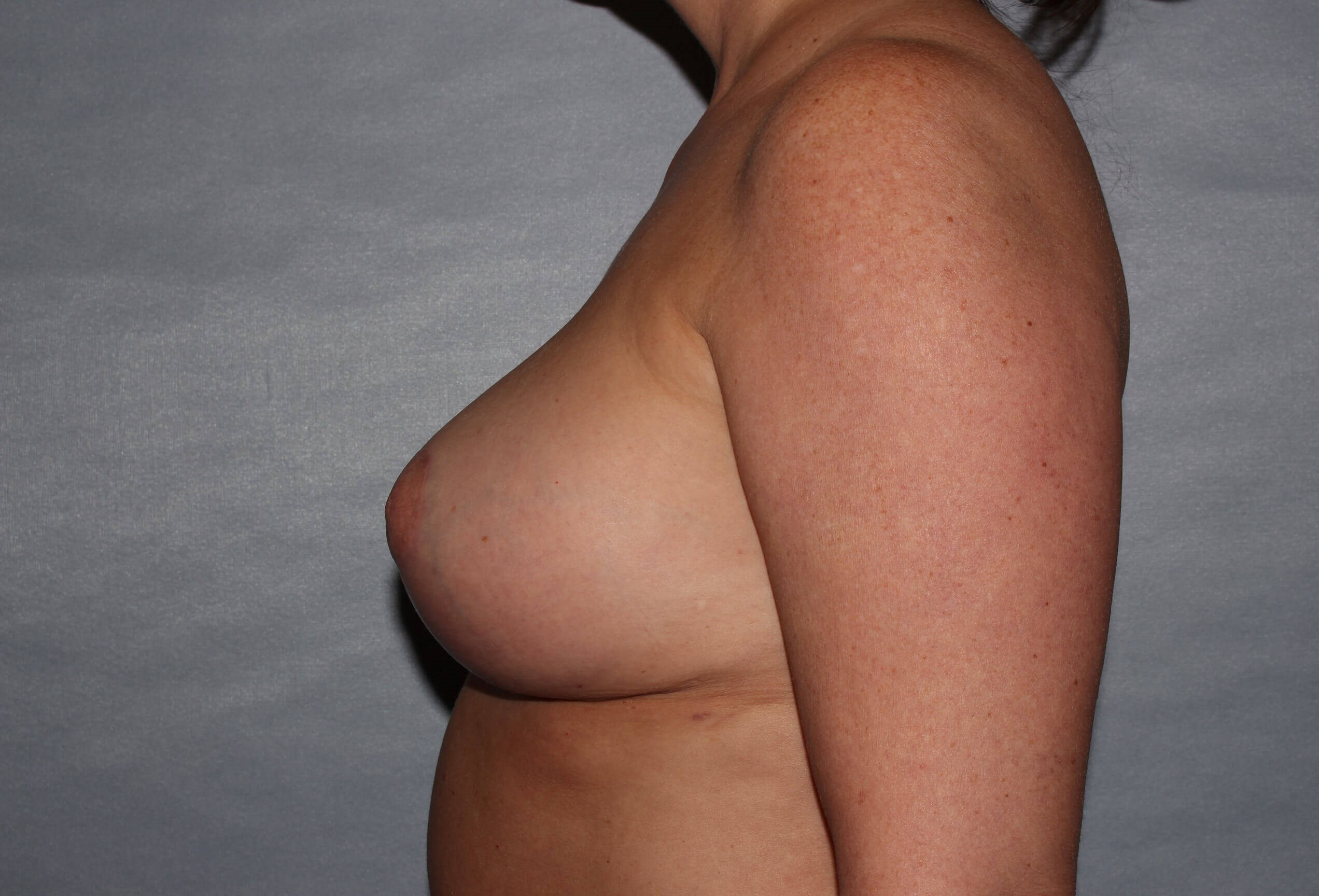 Total Capsulectomy Raleigh After
