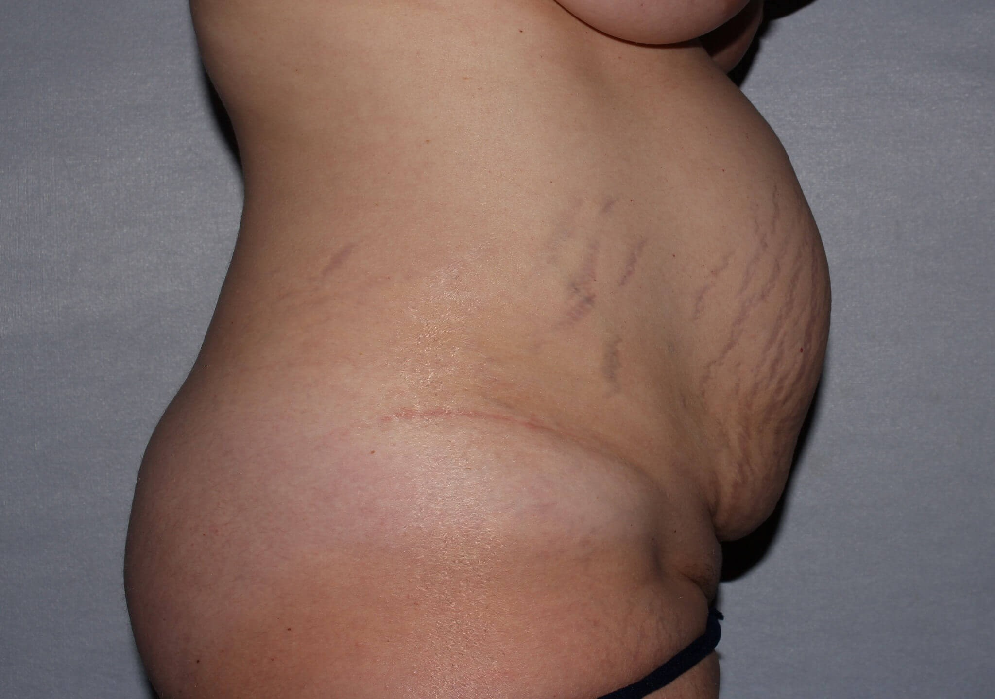 Diastasis Repair Raleigh Before