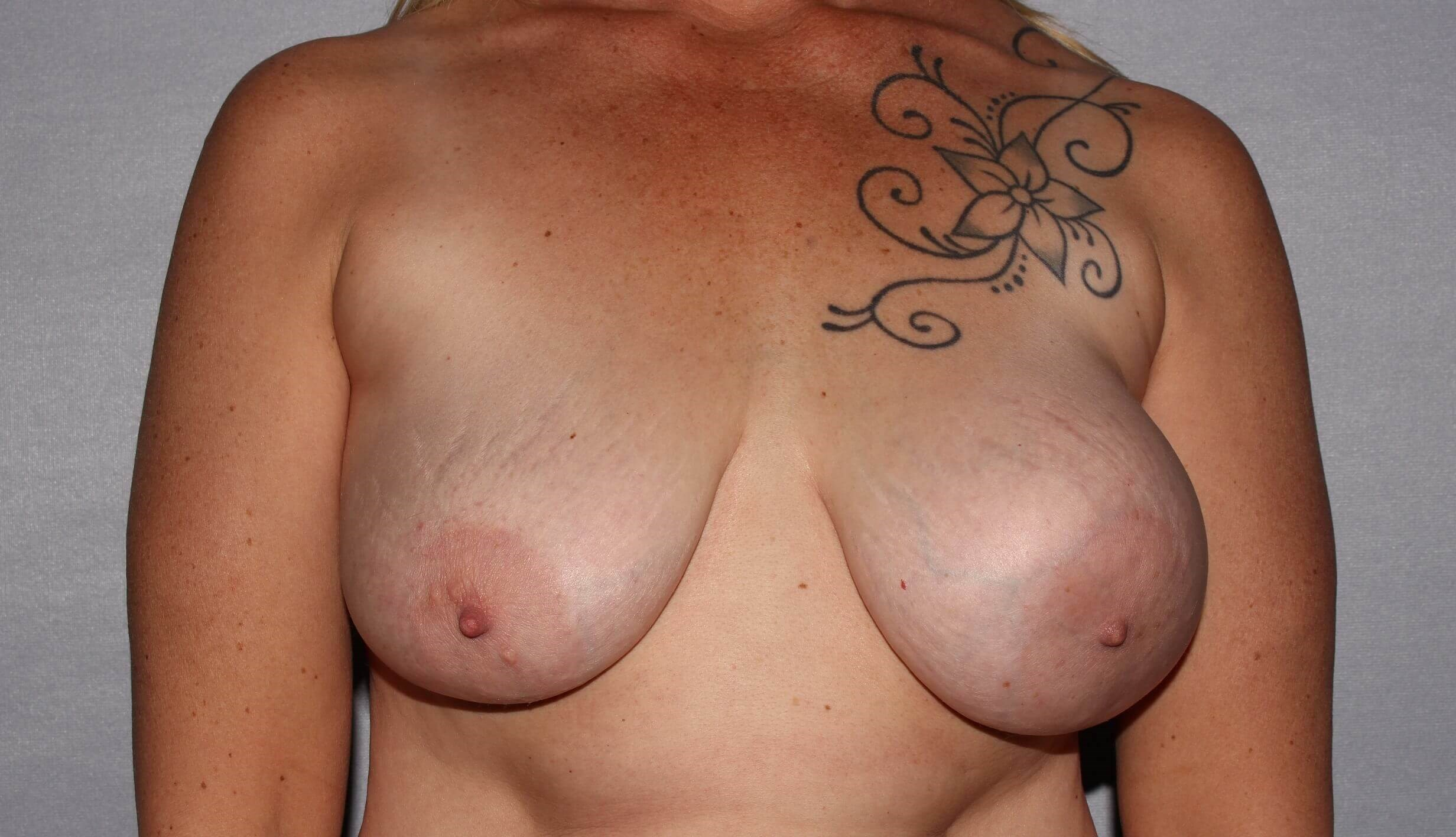 Breast Implant Revision, NC Before