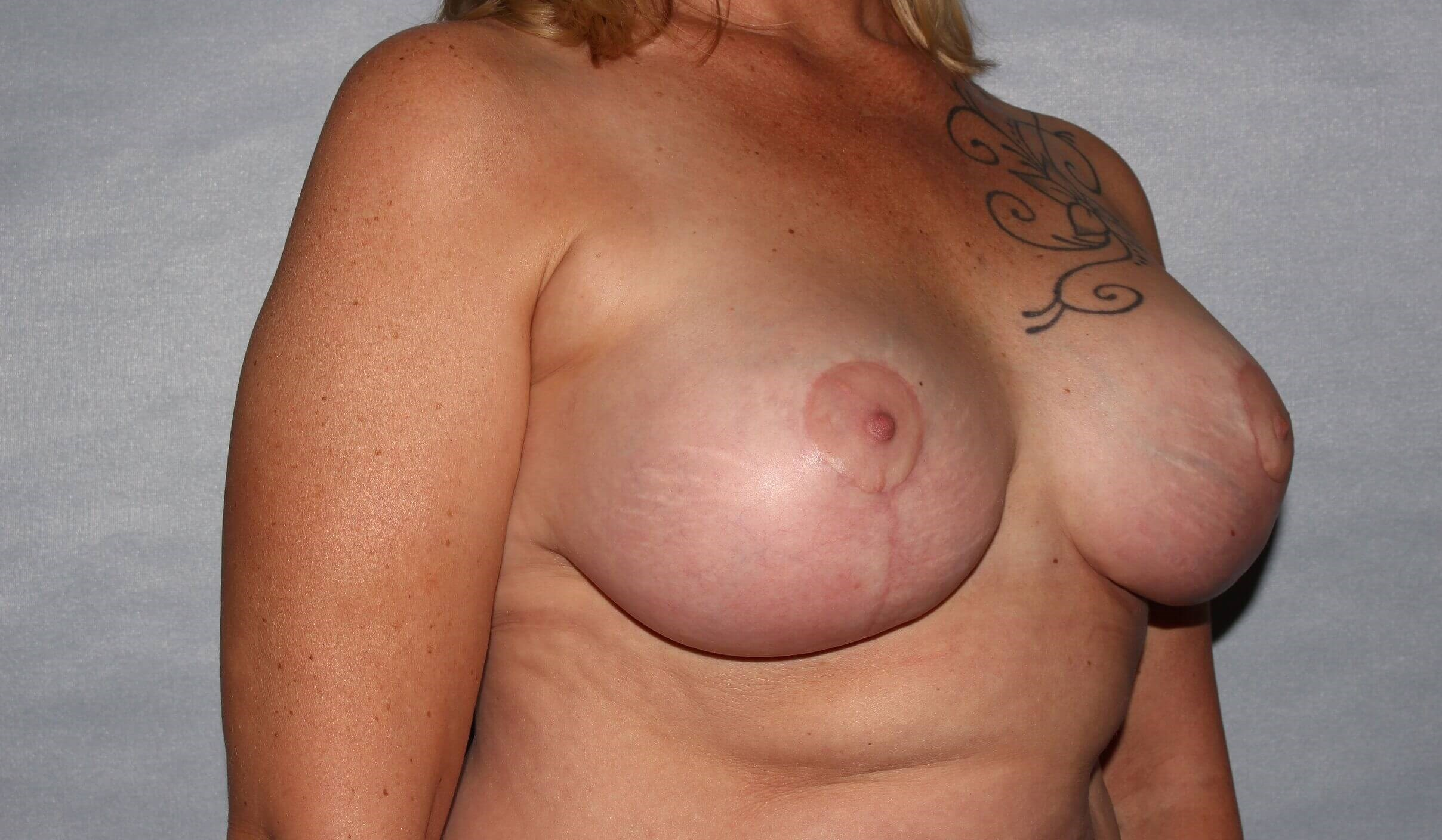 Breast Implant Revision, NC After