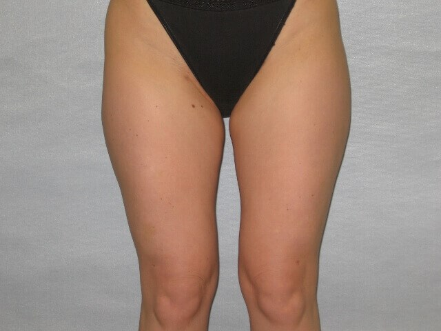 Liposuction of Thighs-Raleigh After