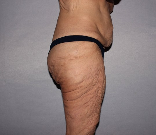 Thigh Lift in Raleigh, NC Before