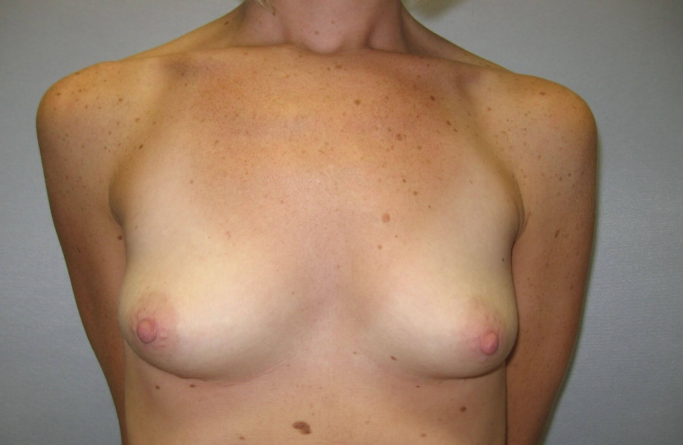 Breast Implant, Raleigh, NC Before