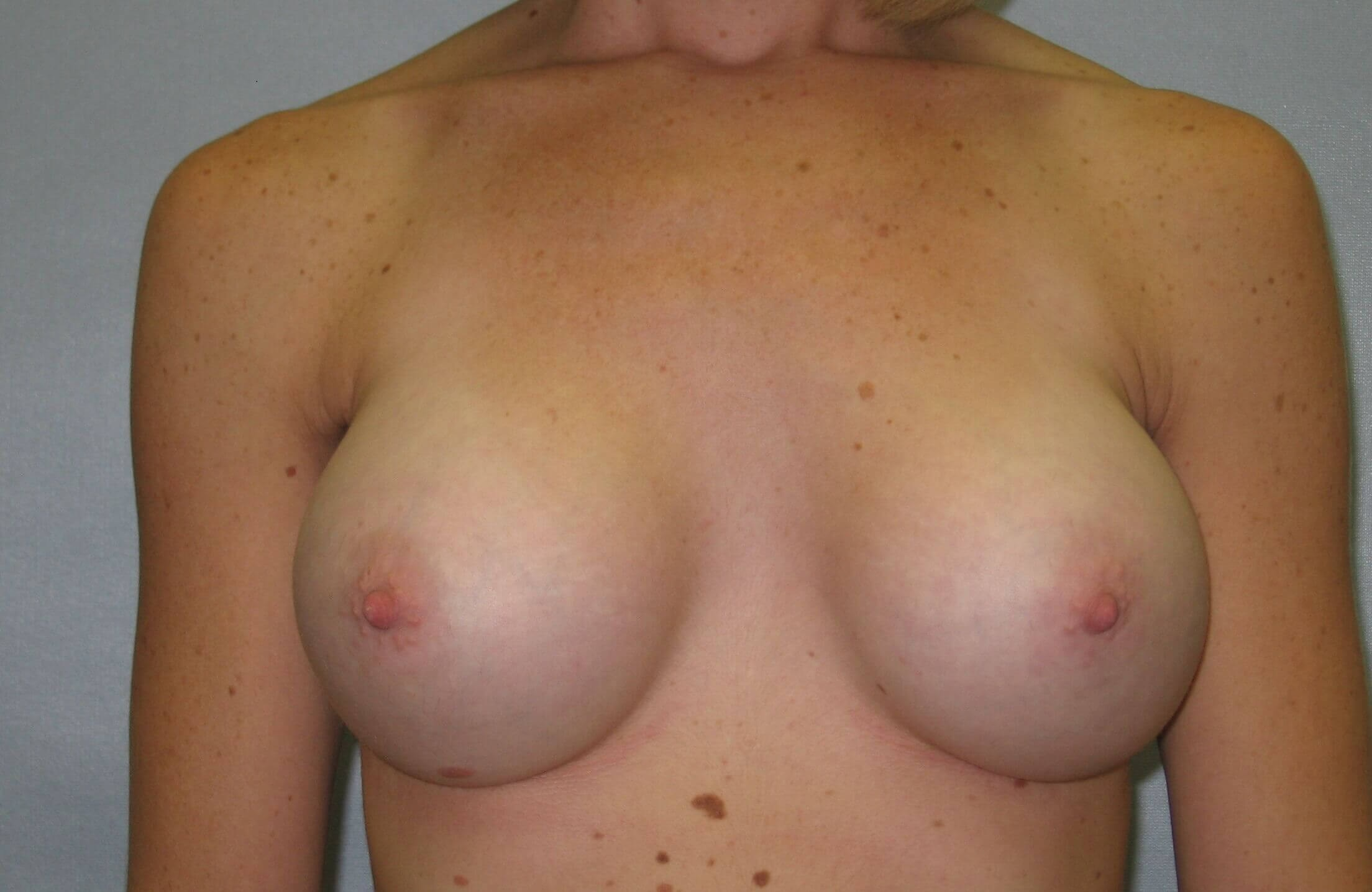 Breast Implant, Raleigh, NC After