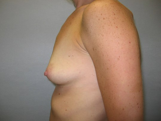 Breast Implants, Raleigh, NC Before