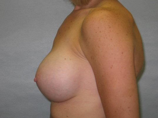 Breast Implants, Raleigh, NC After