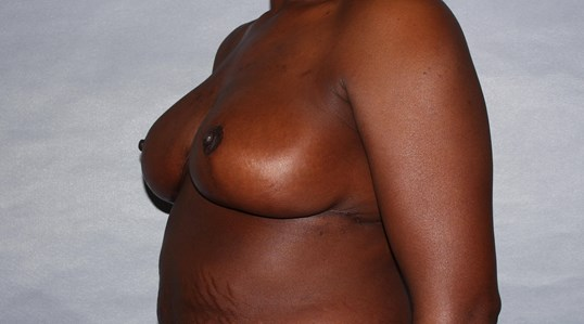 Breast Reduction, Raleigh, NC After