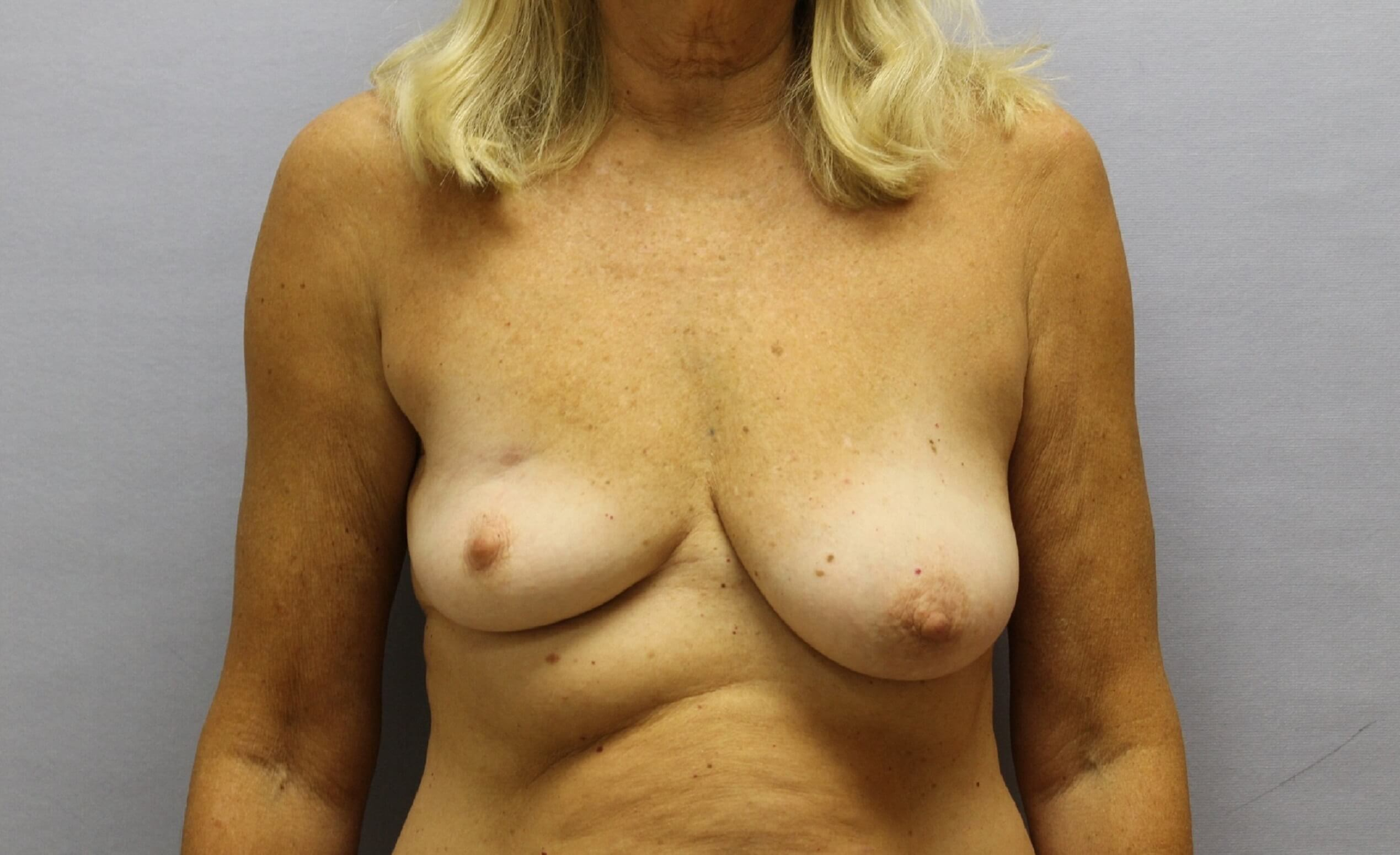 Lumpectomy Correction, NC Before
