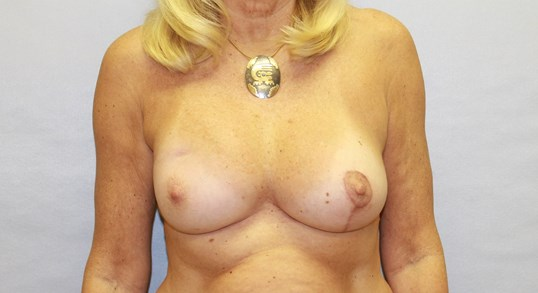 Lumpectomy Correction, NC After
